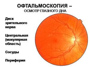Офтальмоскопия в диагностике заболеваний глазного дна