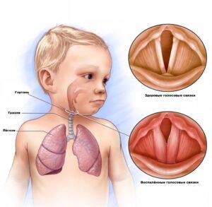 Ларингит: лечение у взрослых, симптомы, диагностика